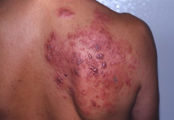 Genital Herpes Infection