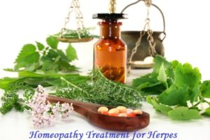 Homeopathy treatment for herpes