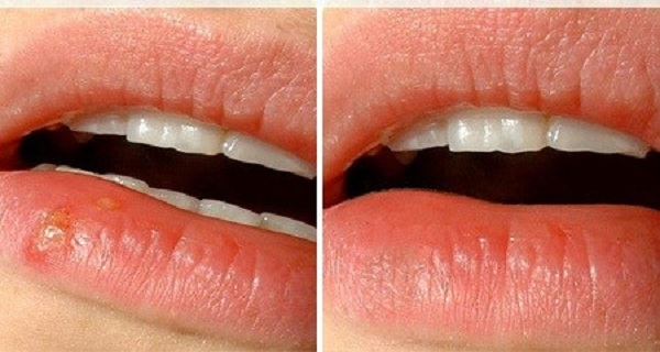 Telling the Difference Between Cold Sores and   Orajel