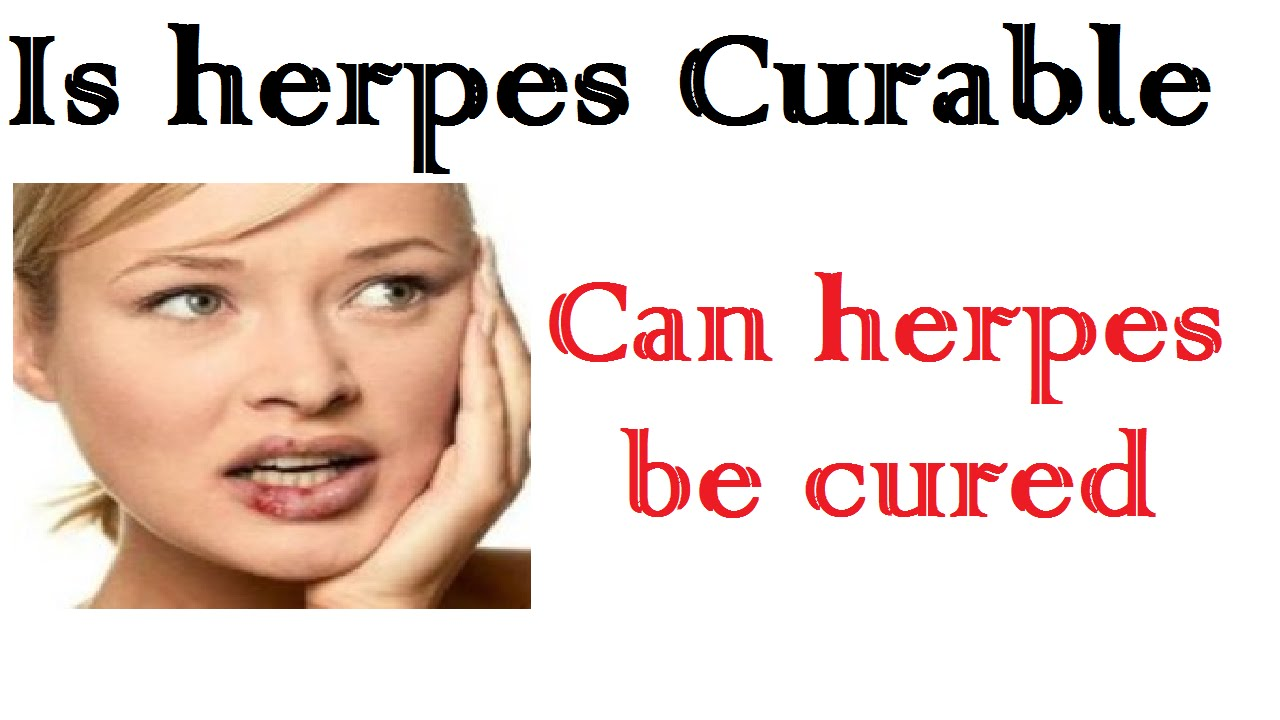 herpes-cureable-herpes