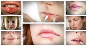 home-remedy-for-cold-sores