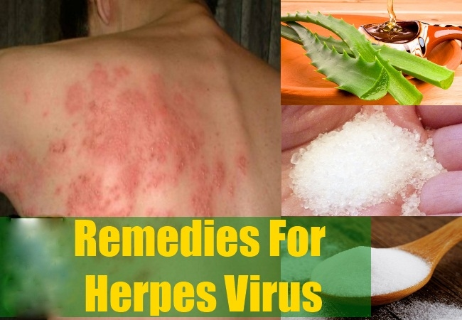 8 natural home remedies for herpes virus fever