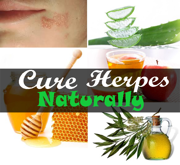 natural herpes cure